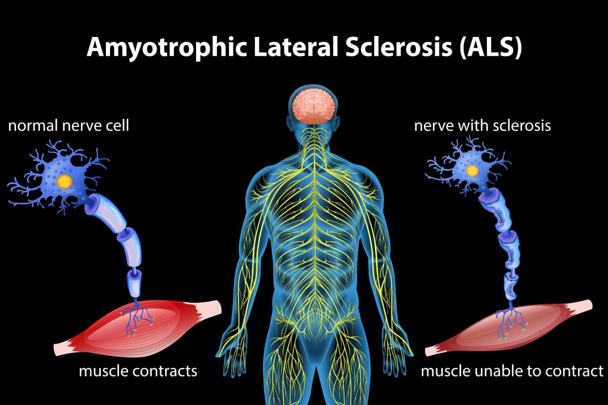 Stages of ALS