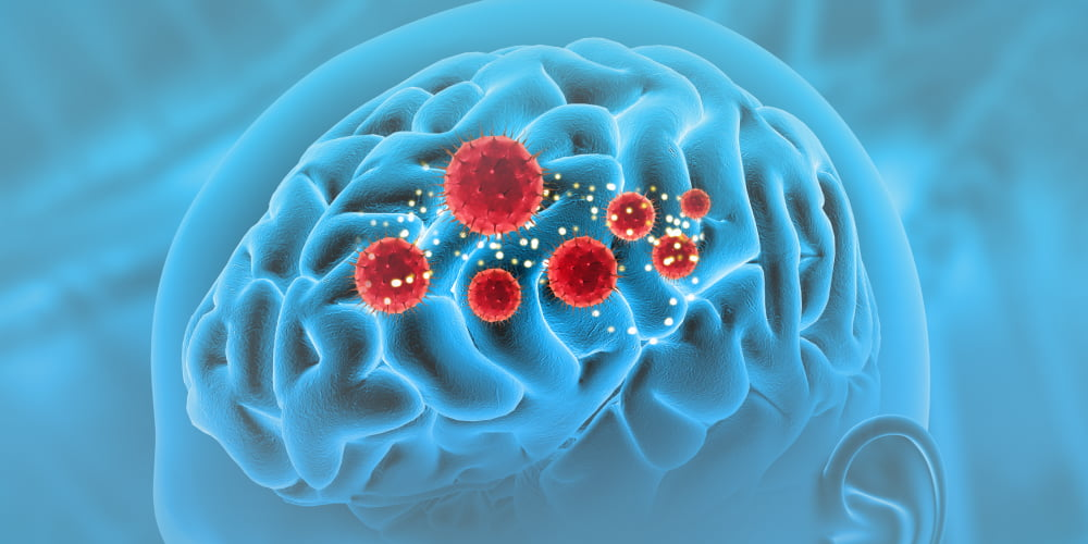 How does the virus affect the brain