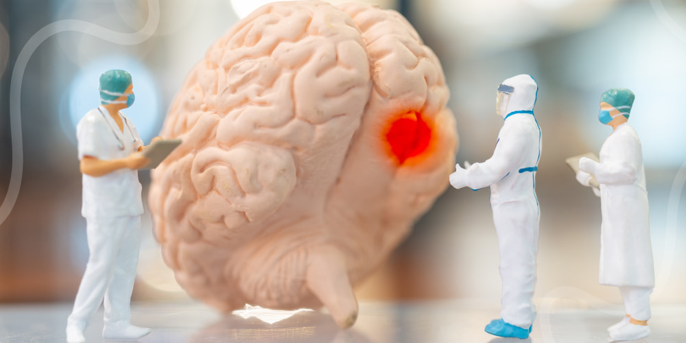Viral Brain Infections